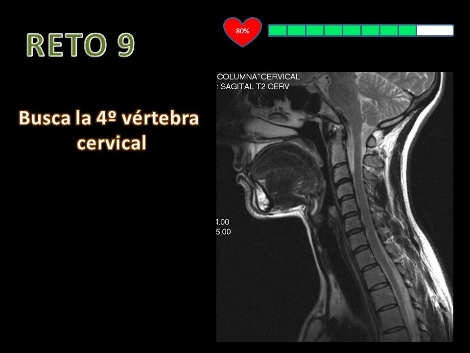 80% RETO 9 Busca la 4º vértebra cervical