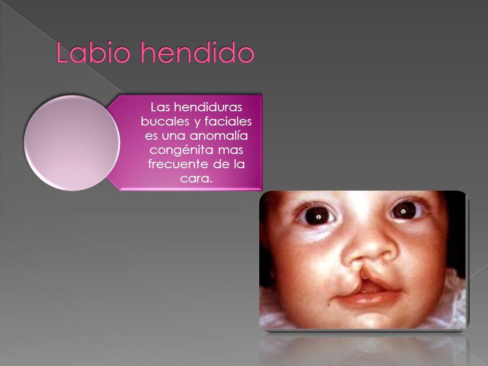 Labio hendido Las hendiduras bucales y faciales es una anomalía congénita mas frecuente de la cara.