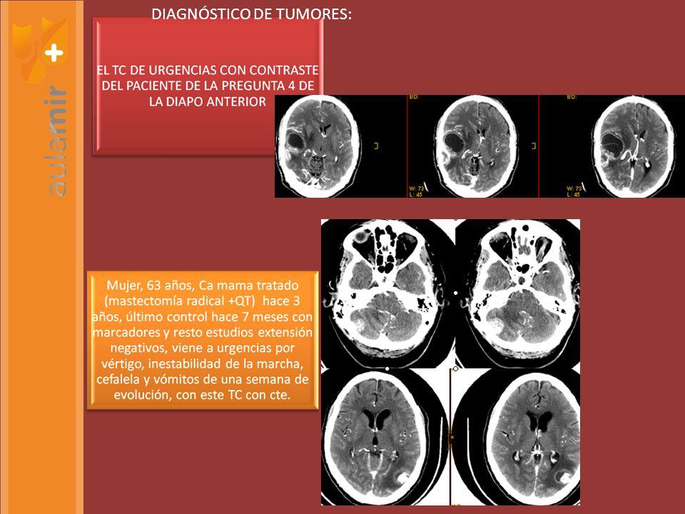 PRUE Diagnóstico de tumores: