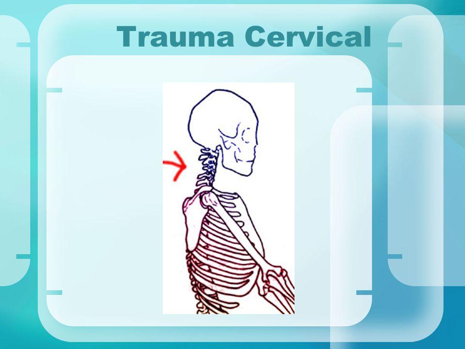 Trauma Cervical