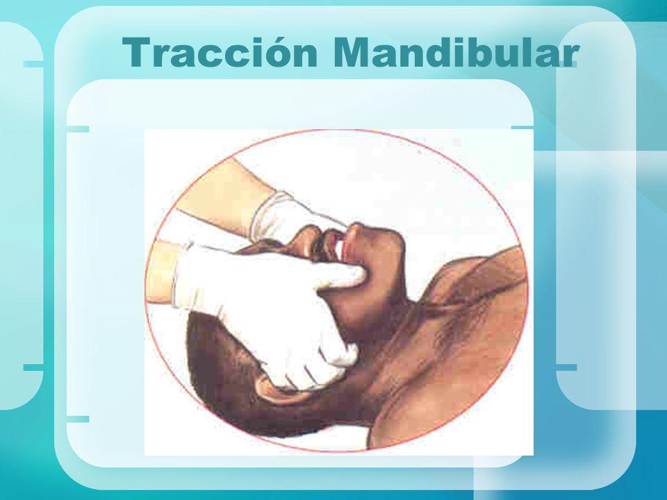 Tracción Mandibular