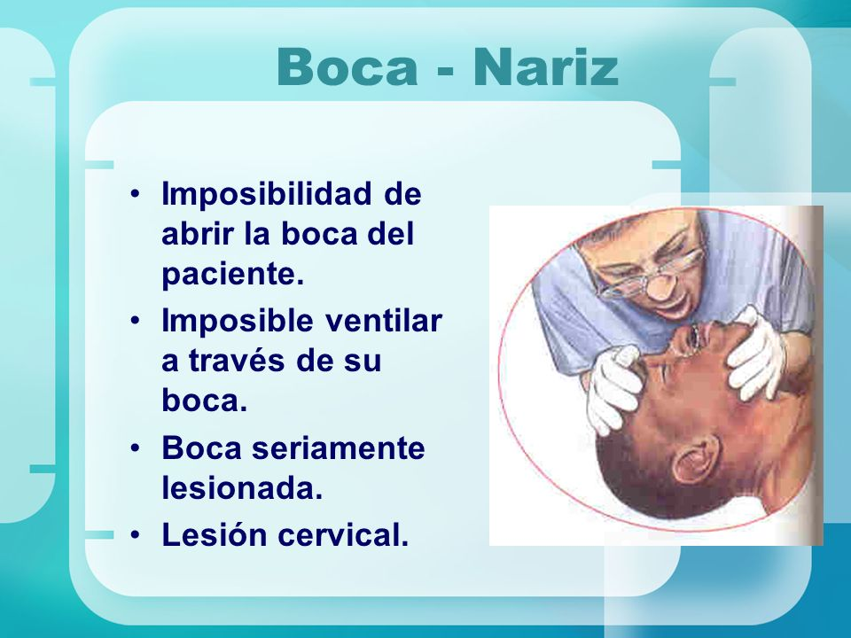 Boca - Nariz Imposibilidad de abrir la boca del paciente.