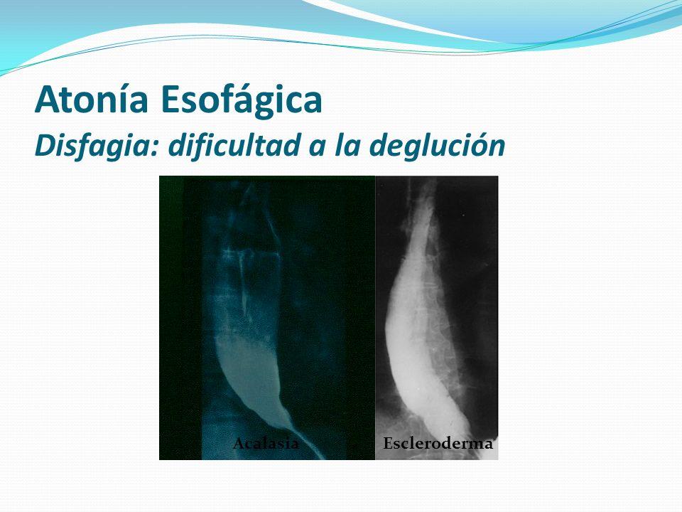 Atonía Esofágica Disfagia: dificultad a la deglución