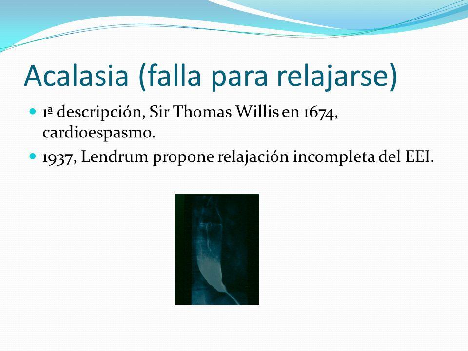 Acalasia (falla para relajarse)
