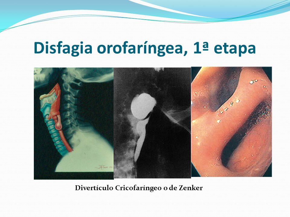 Disfagia orofaríngea, 1ª etapa
