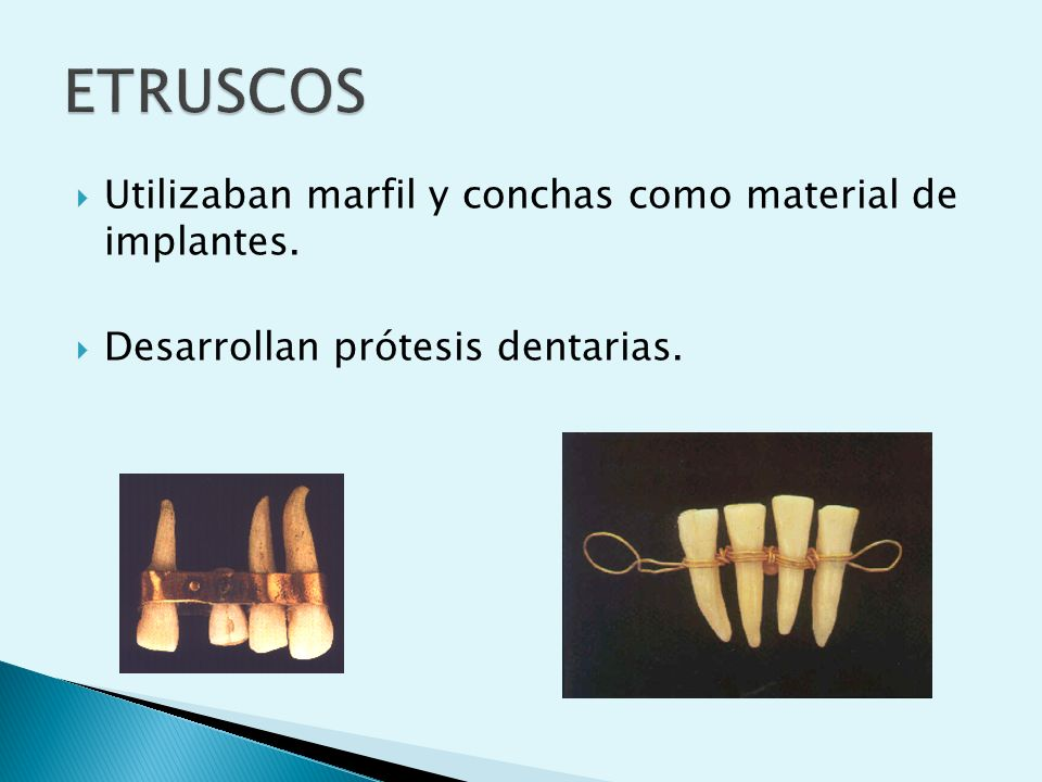 ETRUSCOS Utilizaban marfil y conchas como material de implantes.