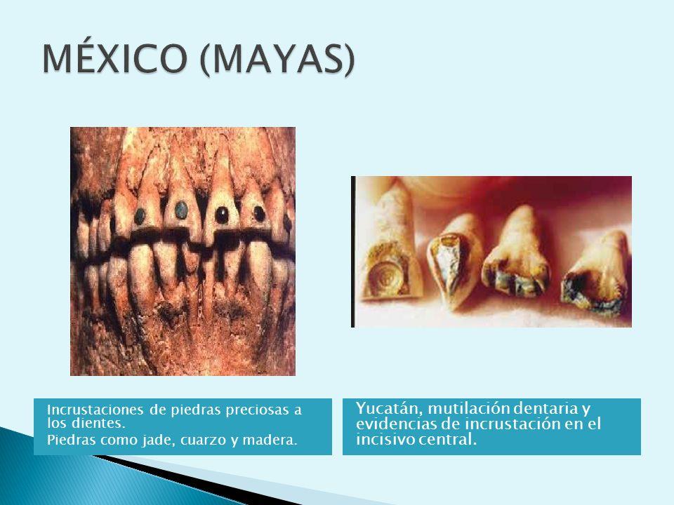 MÉXICO (MAYAS) Incrustaciones de piedras preciosas a los dientes. Piedras como jade, cuarzo y madera.