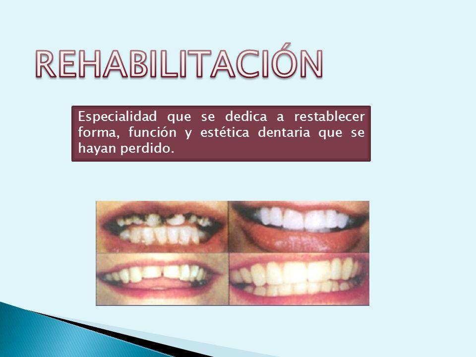 REHABILITACIÓN Especialidad que se dedica a restablecer forma, función y estética dentaria que se hayan perdido.