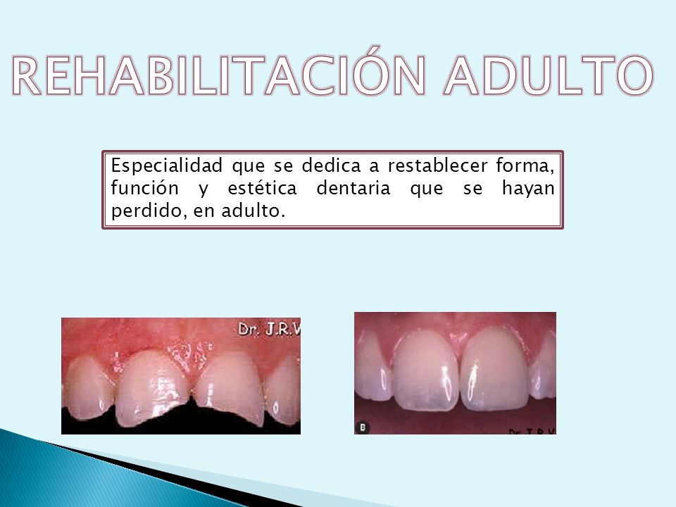 REHABILITACIÓN ADULTO