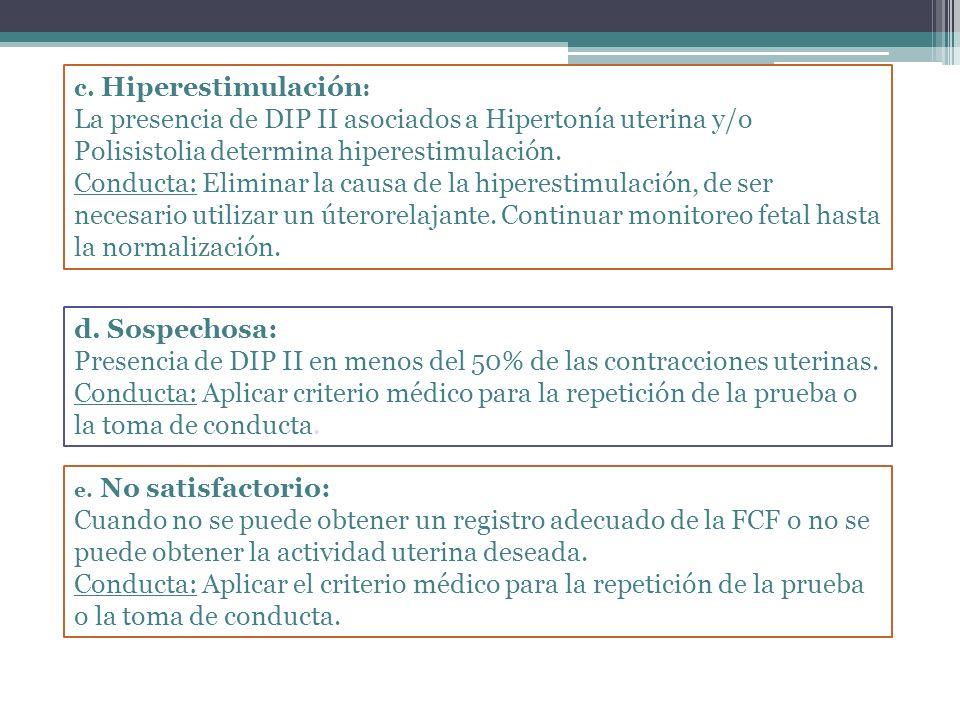 Presencia de DIP II en menos del 50% de las contracciones uterinas.