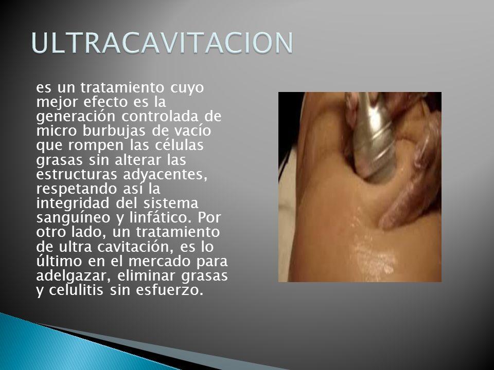 ULTRACAVITACION