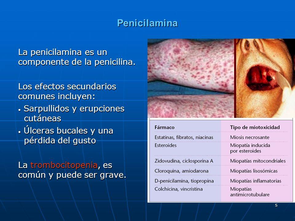 Penicilamina La penicilamina es un componente de la penicilina.
