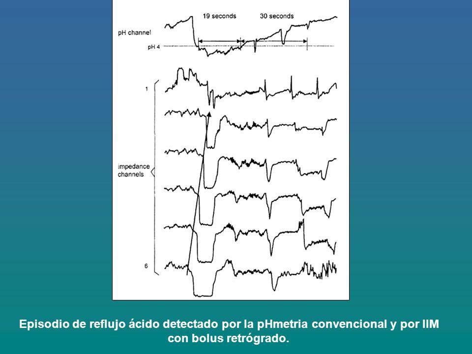 Episodio de reflujo ácido detectado por la pHmetria convencional y por IIM