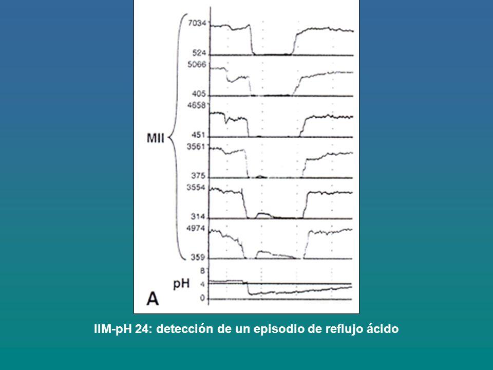 IIM-pH 24: detección de un episodio de reflujo ácido