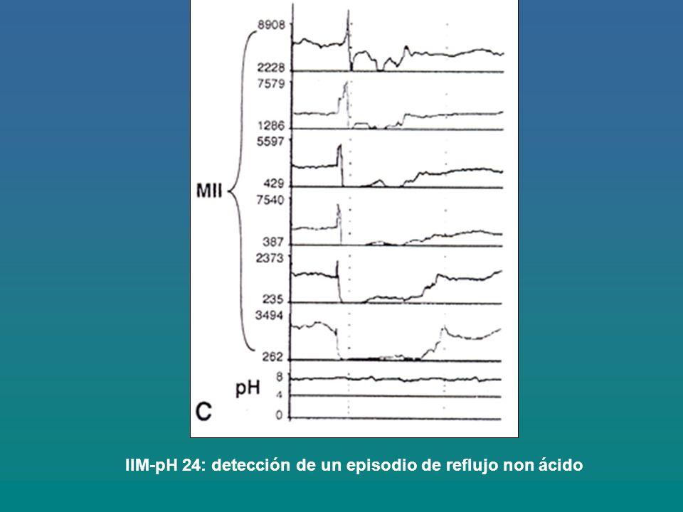 IIM-pH 24: detección de un episodio de reflujo non ácido