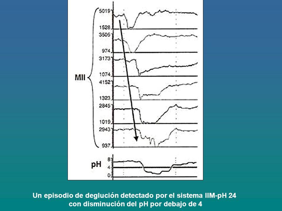 Un episodio de deglución detectado por el sistema IIM-pH 24