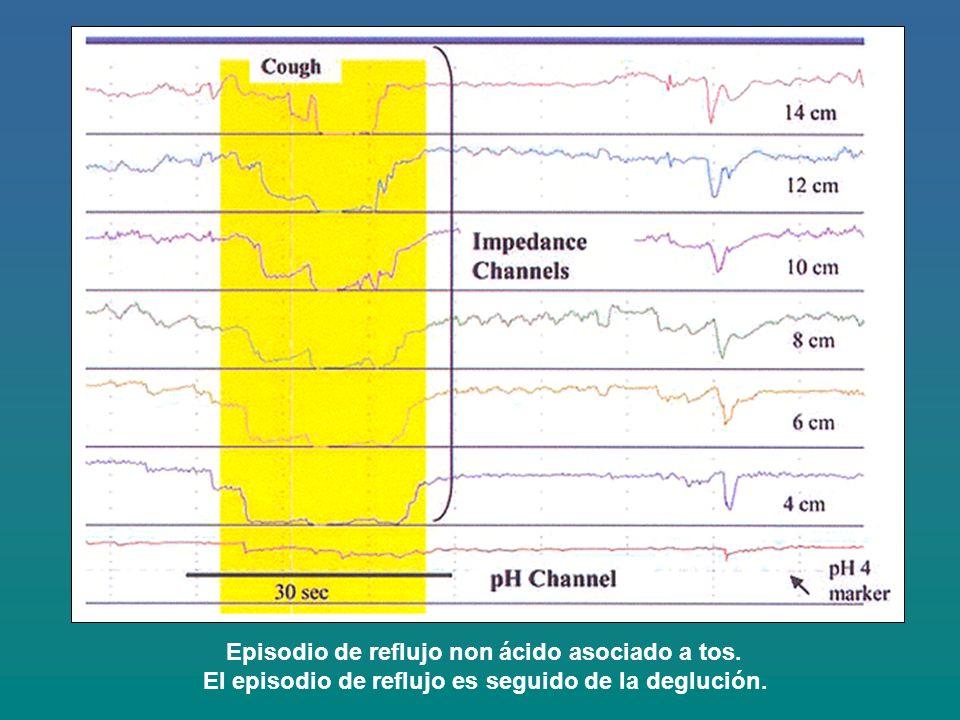 Episodio de reflujo non ácido asociado a tos.