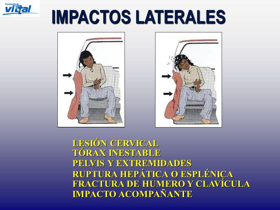 IMPACTOS LATERALES LESIÓN CERVICAL TÓRAX INESTABLE