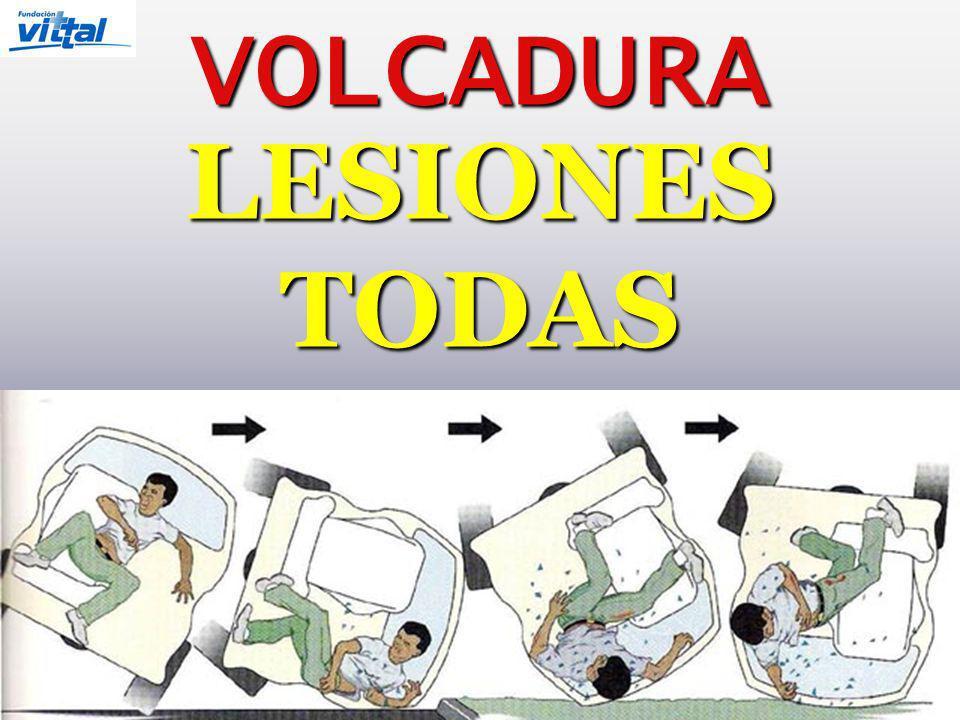 VOLCADURA LESIONES TODAS
