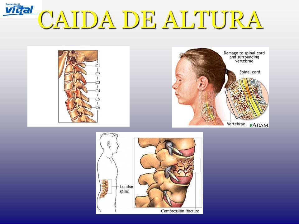 CAIDA DE ALTURA