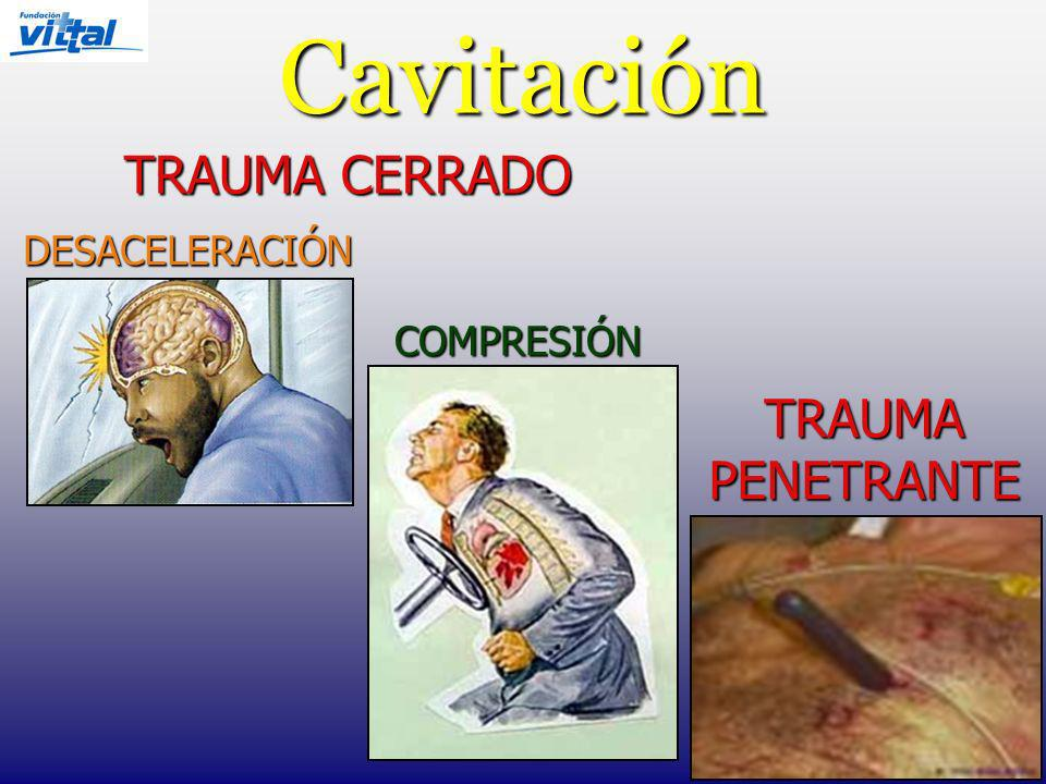 Cavitación TRAUMA CERRADO DESACELERACIÓN COMPRESIÓN TRAUMA PENETRANTE