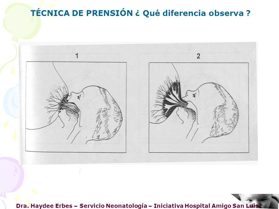TÉCNICA DE PRENSIÓN ¿ Qué diferencia observa