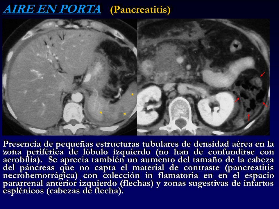 AIRE EN PORTA (Pancreatitis)