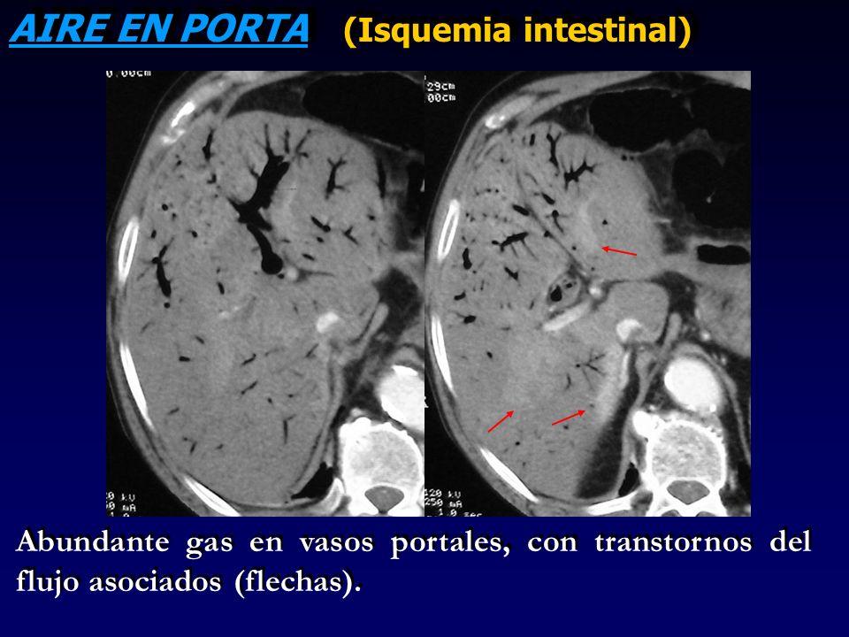 AIRE EN PORTA (Isquemia intestinal)