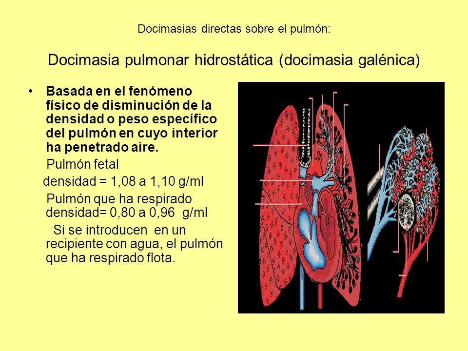 Docimasias directas sobre el pulmón: Docimasia pulmonar hidrostática (docimasia galénica)