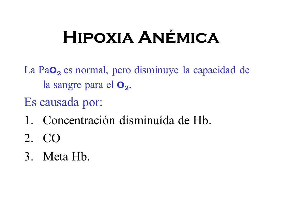 Hipoxia Anémica Es causada por: Concentración disminuída de Hb. CO