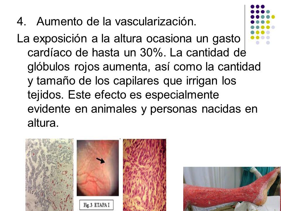 4. Aumento de la vascularización.