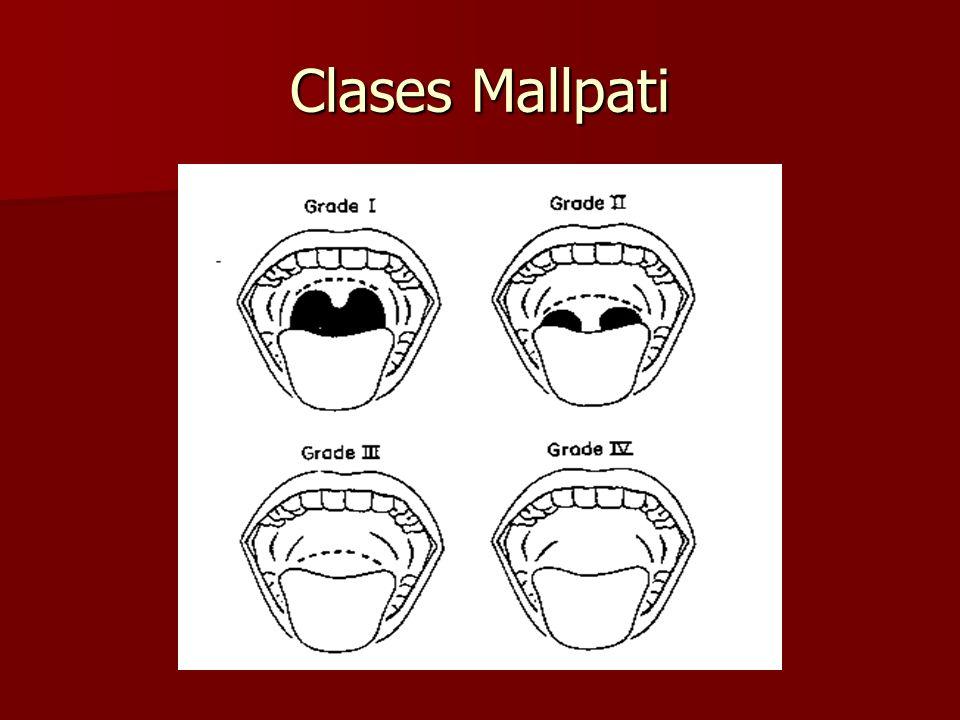 Clases Mallpati