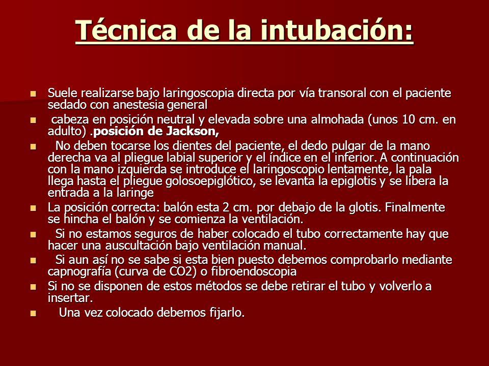 Técnica de la intubación: