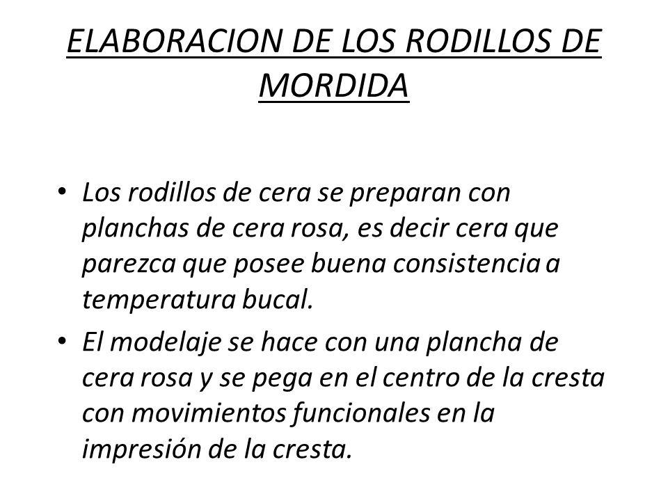 ELABORACION DE LOS RODILLOS DE MORDIDA