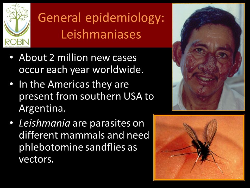 General epidemiology: Leishmaniases