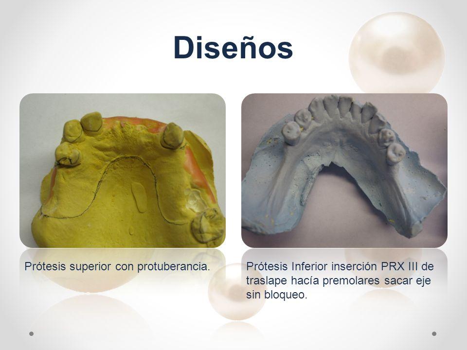 Diseños Prótesis superior con protuberancia.