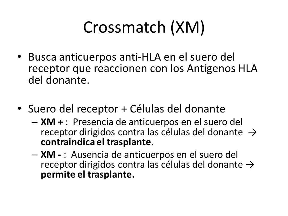 Crossmatch (XM) Busca anticuerpos anti-HLA en el suero del receptor que reaccionen con los Antígenos HLA del donante.