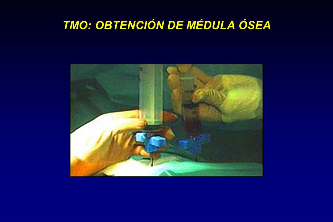 TMO: OBTENCIÓN DE MÉDULA ÓSEA