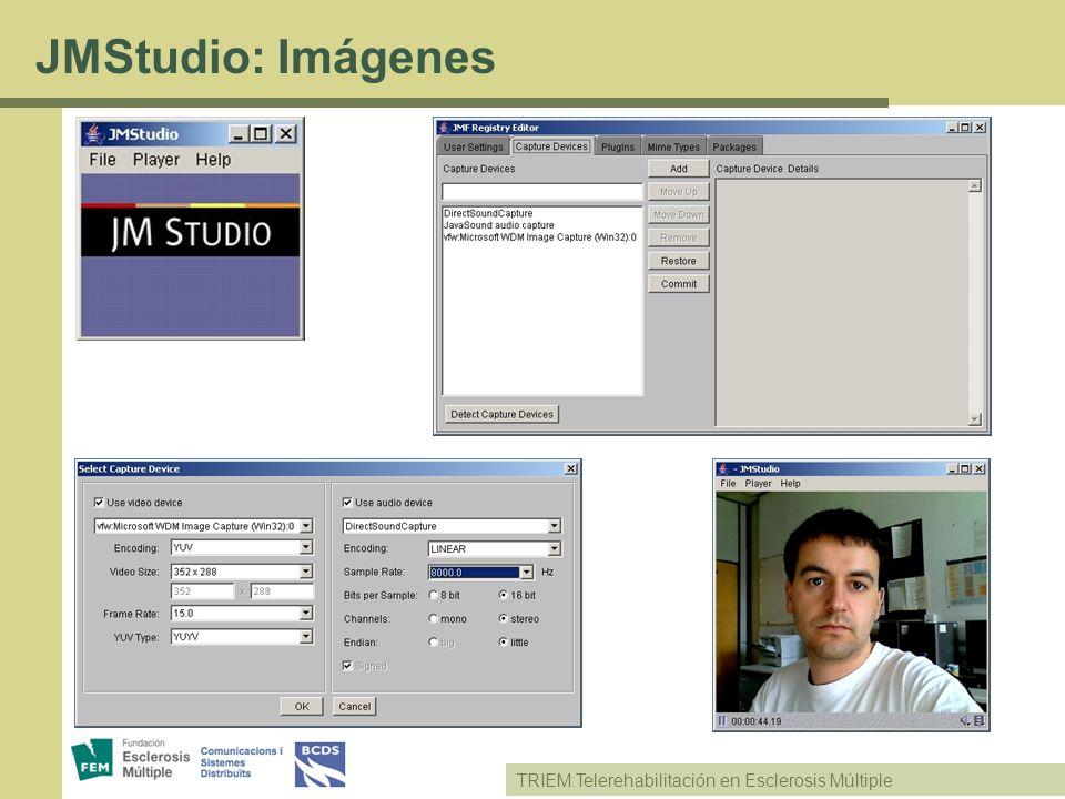 JMStudio: Imágenes TRIEM:Telerehabilitación en Esclerosis Múltiple