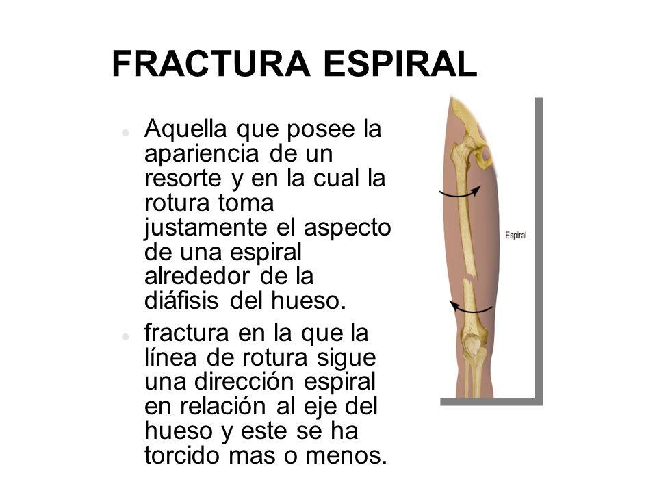 Lujo Fractura Espiral X Ray Imagen - Imágenes de Anatomía Humana ...