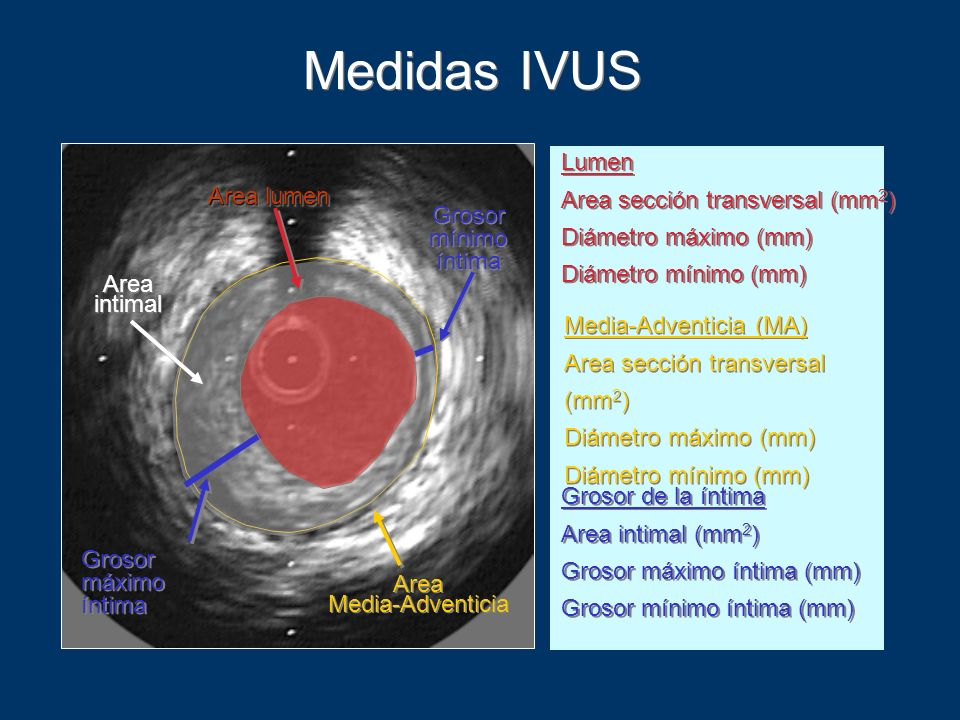 Medidas IVUS Every frame was manually traced .