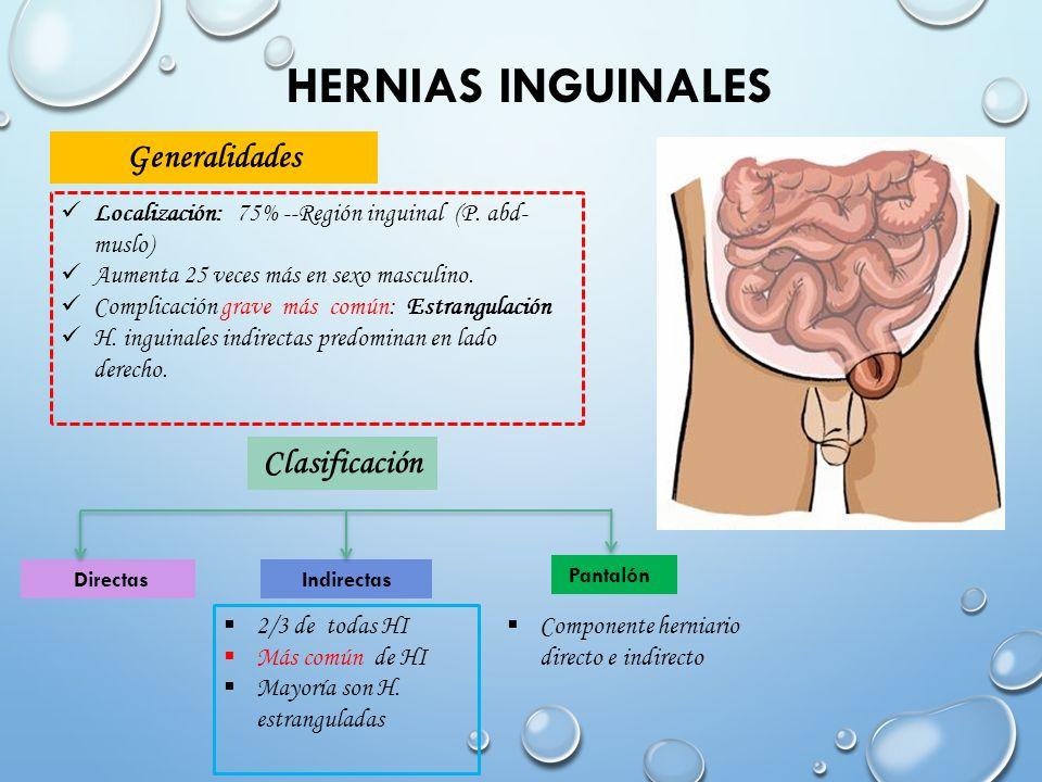 Magnífico Anatomía De La Hernia Inguinal Directa Patrón - Anatomía ...