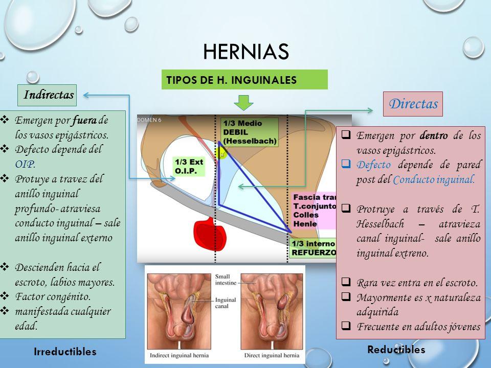 Único La Hernia Inguinal Anatomía Ideas - Anatomía de Las ...