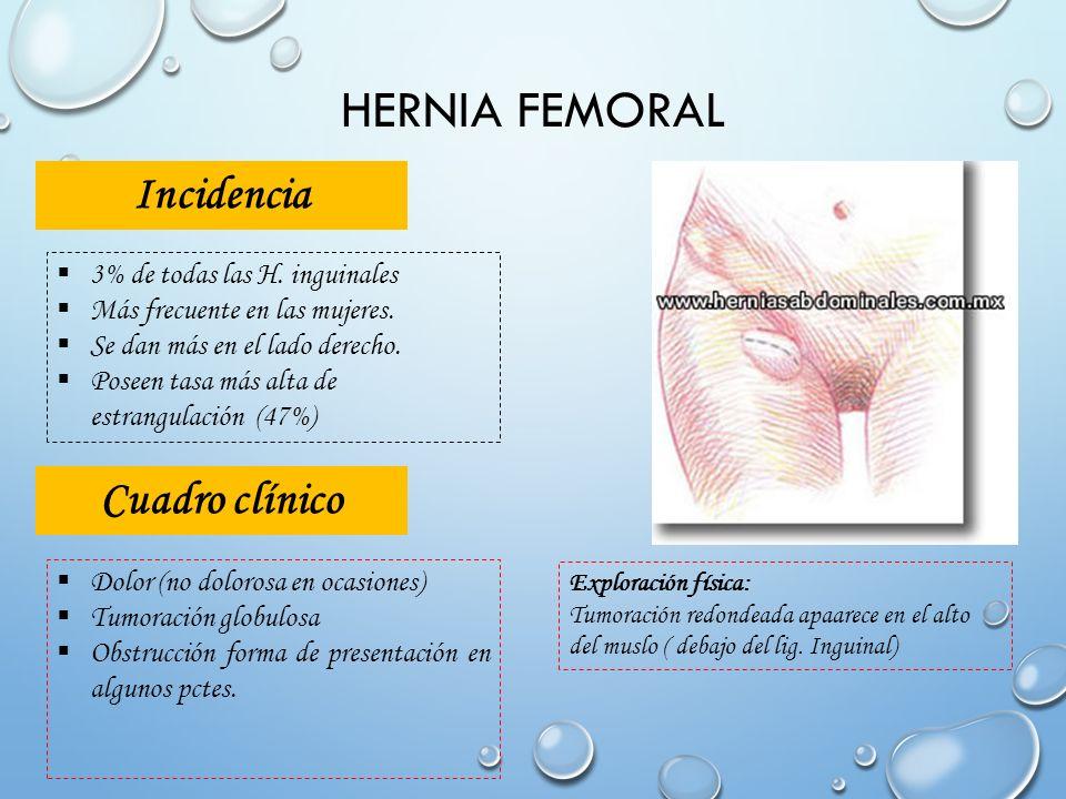 Increíble Anatomía De La Hernia Inguinal Directa Festooning ...