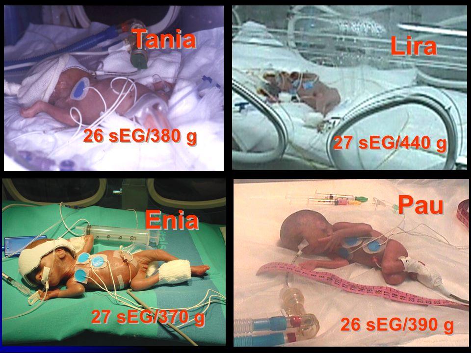 Tania Lira Pau Enia 26 sEG/380 g 27 sEG/440 g 27 sEG/370 g