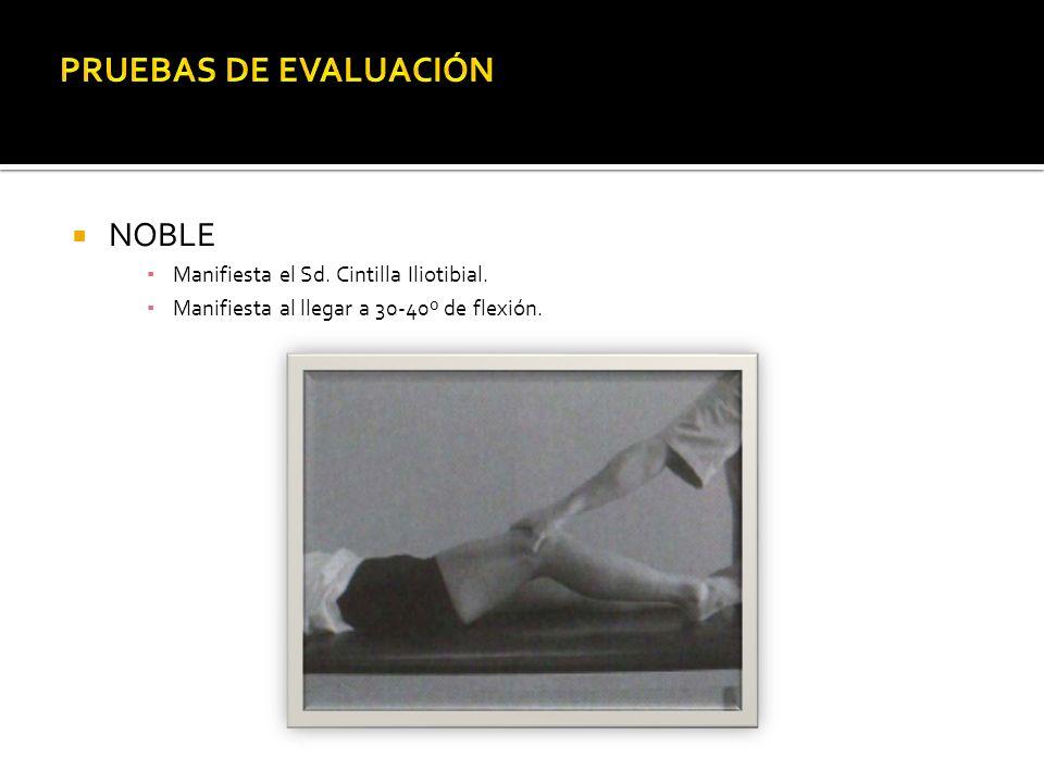 PRUEBAS DE EVALUACIÓN NOBLE Manifiesta el Sd. Cintilla Iliotibial.
