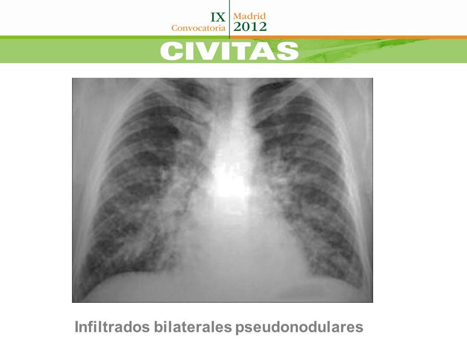Infiltrados bilaterales pseudonodulares