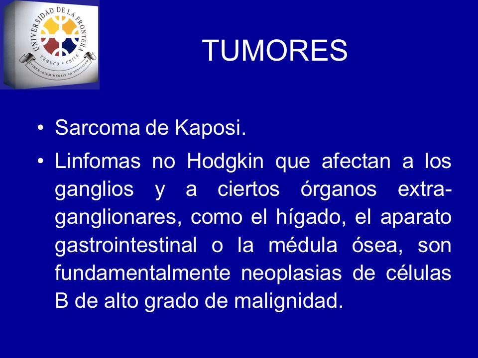 TUMORES Sarcoma de Kaposi.