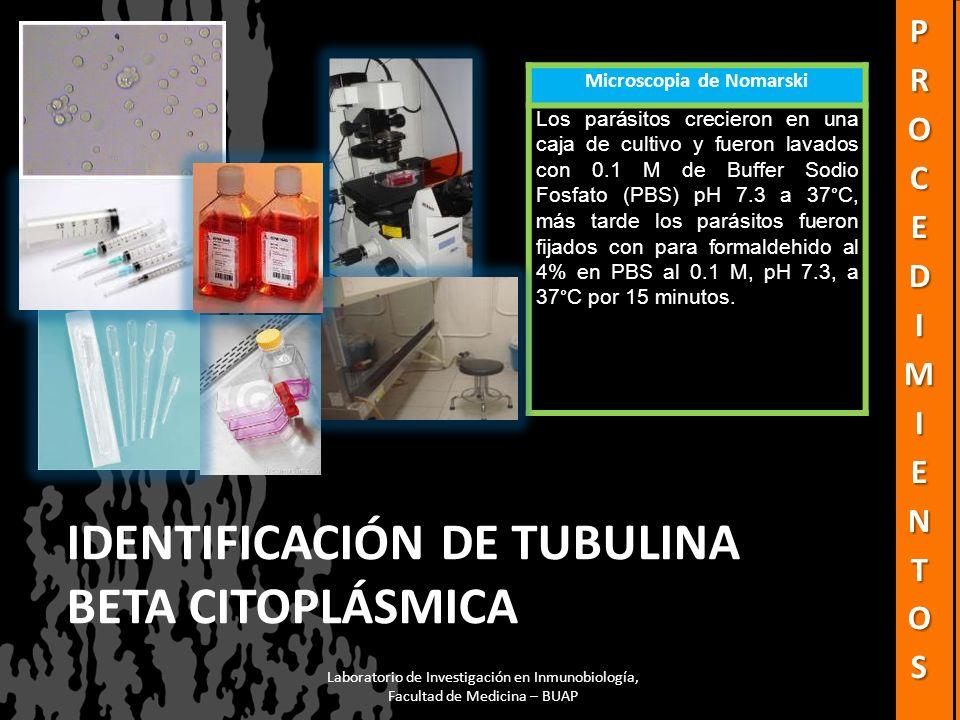 Identificación de tubulina beta citoplásmica