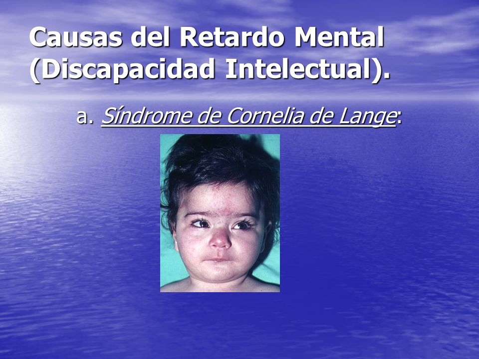 Causas del Retardo Mental (Discapacidad Intelectual).